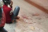 Tin mới nhất vụ giang hồ truy sát, chém lìa tay nam thanh niên ở Sài Gòn
