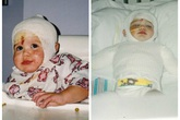 14 năm sau khi bị mẹ nhẫn tâm ném vào lò nướng, cô bé đáng thương giờ ra sao?
