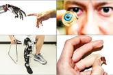 10 bộ phận cơ thể có thể thay thế