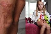 Sử dụng kem chống nắng, bé 9 tuổi bị cháy da nghiêm trọng