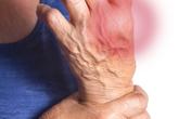 Viêm khớp hệ thống làm tăng nguy cơ tim mạch lên gấp 4 lần