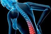 Khắc phục loãng xương ở phụ nữ mãn kinh