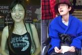 Nữ thạc sĩ xinh đẹp bị động kinh sau khi phẫu thuật thẩm mỹ gọt hàm