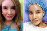 Sau 5 năm chuyển giới thành nữ, triệu phú Malaysia phẫu thuật để trở lại làm nam giới
