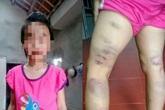 Viết sai chính tả, học sinh lớp 2 bị cô giáo đánh thâm tím 2 chân
