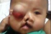 Rơi nước mắt trước khuôn mặt đa dị tật của bé trai 6 tháng tuổi