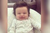 Em bé vừa sinh ra đã có nhiều tóc một cách đáng kinh ngạc