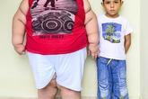 Cậu bé 5 tuổi nặng gần 80 kg gây sốc