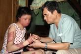 Cô gái bị chồng tưới xăng đốt có hy vọng phục hồi đôi tay