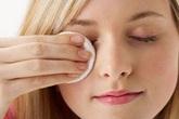 Cách đơn giản chữa lẹo ở mắt