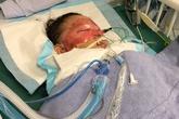 Bé trai 2 tuổi bỏng nặng vì với tay trúng chảo dầu đang sôi
