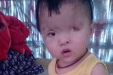 Bé gái 1 tuổi nguy cơ mù vĩnh viễn vì không có tiền phẫu thuật