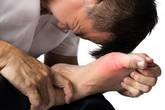 Bệnh gút ăn gì để giảm đau?