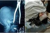 Người phụ nữ sống sót thần kỳ sau khi bị kìm cắm sâu trong não