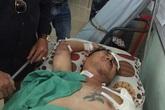 Một ca sĩ Việt Nam bị tai nạn mất một cánh tay