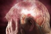Máu lên não kém có thể gây đột quỵ nguy hiểm