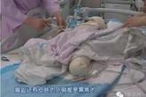 Con 6 tháng tuổi bỏng nặng vì mẹ để chơi một mình với máy sấy tóc