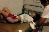 Giận bạn trai, cô gái 16 tuổi tự rạch nát cánh tay tự tử