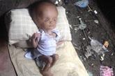 """Cô bé khuyết tật bị mẹ đẻ vứt bỏ sống sót nhờ tình yêu thương của """"người lạ"""""""