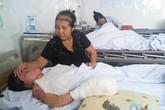 Cô gái bị chồng tưới xăng đốt được phẫu thuật tay phải