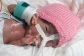 Sự hồi sinh kỳ diệu của em bé chào đời chỉ hơn 200 gram