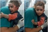 Đau lòng trước hình ảnh cậu bé Syria người đầy máu tuyệt vọng ôm chặt lấy y tá