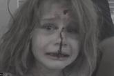 Bé gái Syria kêu khóc gọi cha với khuôn mặt đầy máu sau vụ nổ bom