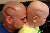 Con trai bị u não, ông bố đã làm một việc khiến nhiều người bất ngờ