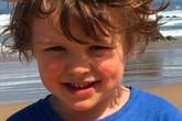 Tai nạn hi hữu: Cậu bé 5 tuổi rách bụng vì bị hút vào ống thoát nước của bồn tắm