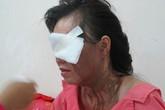 Một phụ nữ bị tạt axit tại trung tâm Sài Gòn