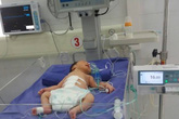 """3 giờ cứu bé sơ sinh """"1 giờ tuổi"""" bị lòi toàn bộ ruột, tạng"""