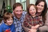 Bộ ảnh của anh và em trai mắc hội chứng Down khiến hàng triệu trái tim rung động
