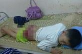 Thái Nguyên: Bé trai 13 tuổi bị cha đánh bầm dập