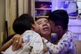 Cặp song sinh dính liền Việt - Đức sau 28 năm mổ tách rời