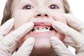 Vì sao răng bé bị đen?