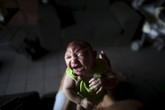 TP.HCM: Thai phụ mắc Zika sinh con ra sao?