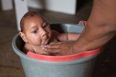 Virus Zika nghi gây teo não lan tới Lào, nguy cơ xâm nhập vào Việt Nam