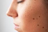 Mối nguy hiểm khi cơ thể xuất hiện nhiều nốt ruồi