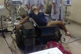 Bất cẩn khi làm việc, nam thanh niên bị máy gạch nghiền nát chân
