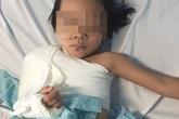 Cứu bé gái 5 tuổi bị dập nát cánh tay do tai nạn giao thông