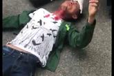 Hải Phòng: Đang đi trên đường, nam thanh niên bị cứa cổ