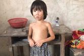 Tương lai mịt mù của người phụ nữ tâm thần sinh 2 con được cha đứa trẻ cho 150.000 đồng