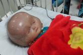 Thông tin mới nhất về bé trai 13 tháng tuổi mắc bệnh có đầu to bất thường