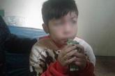 Nhà trường, nhà chức trách lên tiếng vụ bé trai 10 tuổi bị bố đẻ, mẹ kế đánh đập dã man