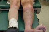 """Suýt mất chân vì """"bài chữa lạ"""" của lang vườn"""