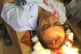 Hà Nội: Bác sĩ bị người nhà bệnh nhân hành hung, máu đổ trên bệnh án