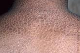 Bệnh da vẩy cá bẩm sinh có chữa khỏi được không?