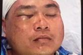 Hải Phòng: Điều tra làm rõ nhóm côn đồ truy sát người dân