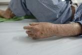 Cô gái 29 năm chiến đấu với căn bệnh lột da như rắn
