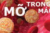 Người có dấu hiệu này nguy cơ bị máu nhiễm mỡ cao, cần điều chỉnh ngay chế độ ăn